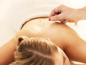 acupuncturec1