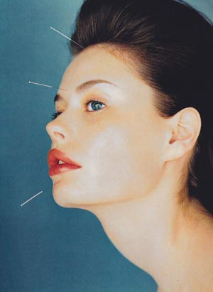 vogue00acupuncture1