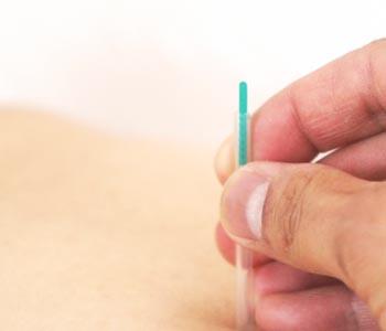 needle4a