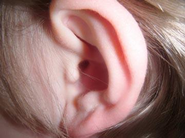 ear5a